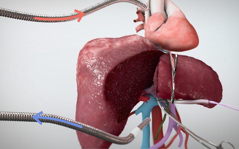 Extended right hepatectomy with veno veno bypass (Part I)